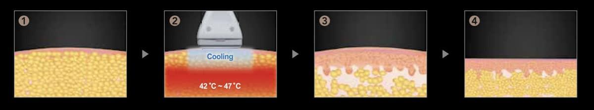 fasi del trattamento laser leshape